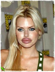 115413133_Collagen_Lip_Injection_Freaks_1